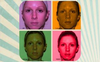 18 МИФОВ о пилинге для кожи (Комментируют врачи)