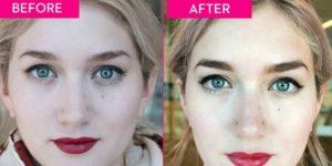 фото до и после пилинга бровей