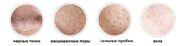 nedostatki-kozhi