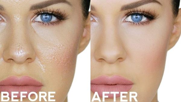 фото до и после скраба для жирной кожи