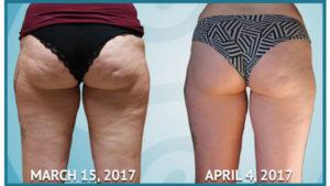 до и после антицеллюлитного скраба