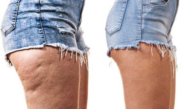 до и после скраба против целлюлита